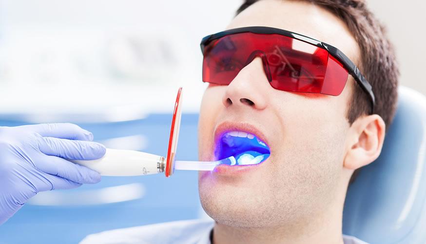 Trattamenti Laser per la cura della Malattia Parodontale